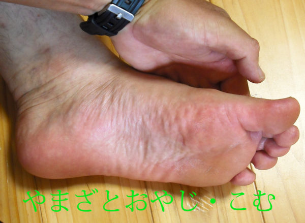 足にクリアネオを塗る2