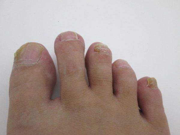 汚くみえる足